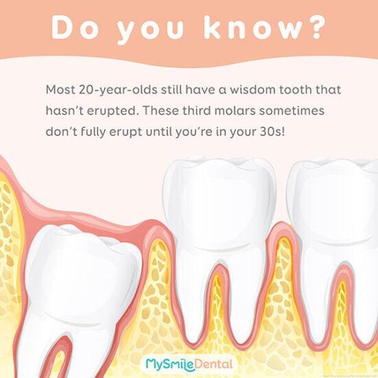 wisdom teeth fun fact