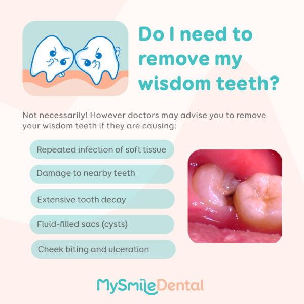 should i remove wisdom teeth mysmile dental