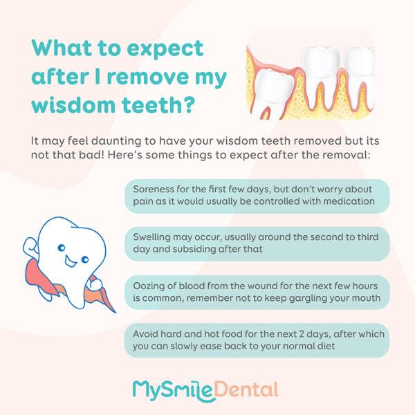 What to expect after I remove my wisdom teeth?